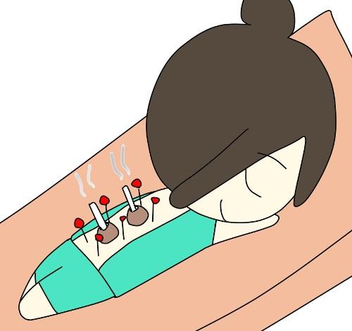 鍼とお灸を受けるキミコさん