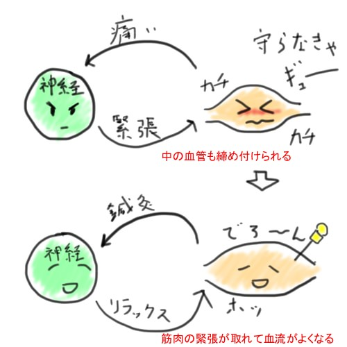 針の効果の仕組み