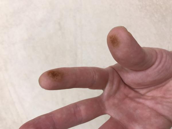知熱灸の指