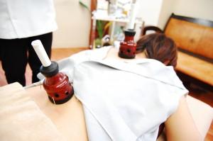 鍼と棒温灸