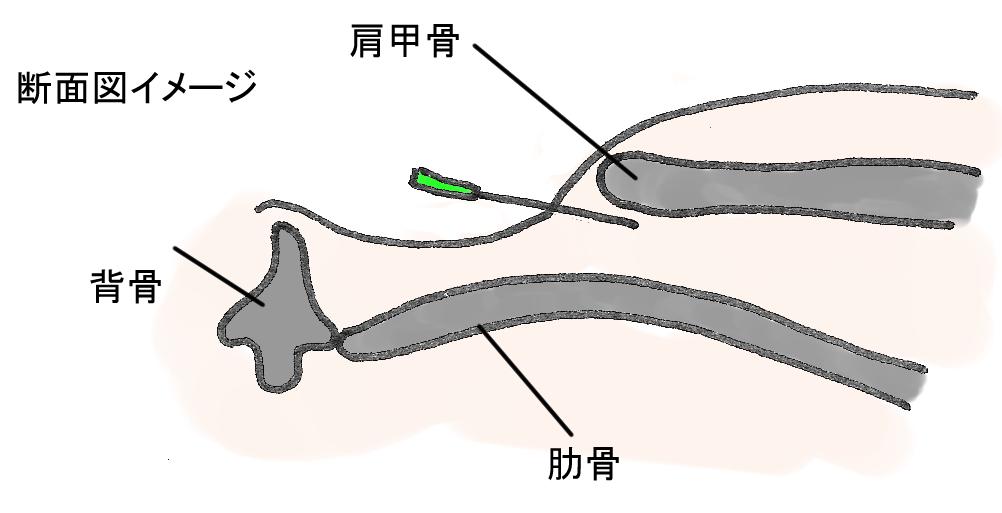 鍼肩甲骨の下